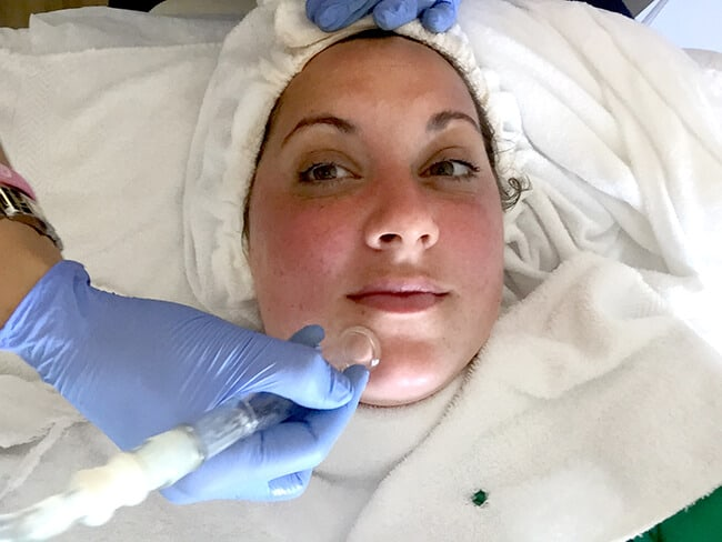 The Benefits of Hydrafacial